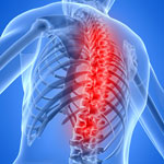 back pain and low back pain treated in Rhode Island