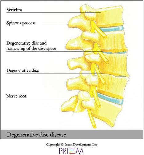 Brilliant University Orthopedics Degenerative Disc Rhode Island Wiring 101 Picalhutpaaxxcnl