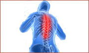 back pain, low back pain, sciatica