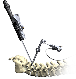 spine navigation technology for spine surgery in rhode island, 3d imaging used by spine surgeons during surgery